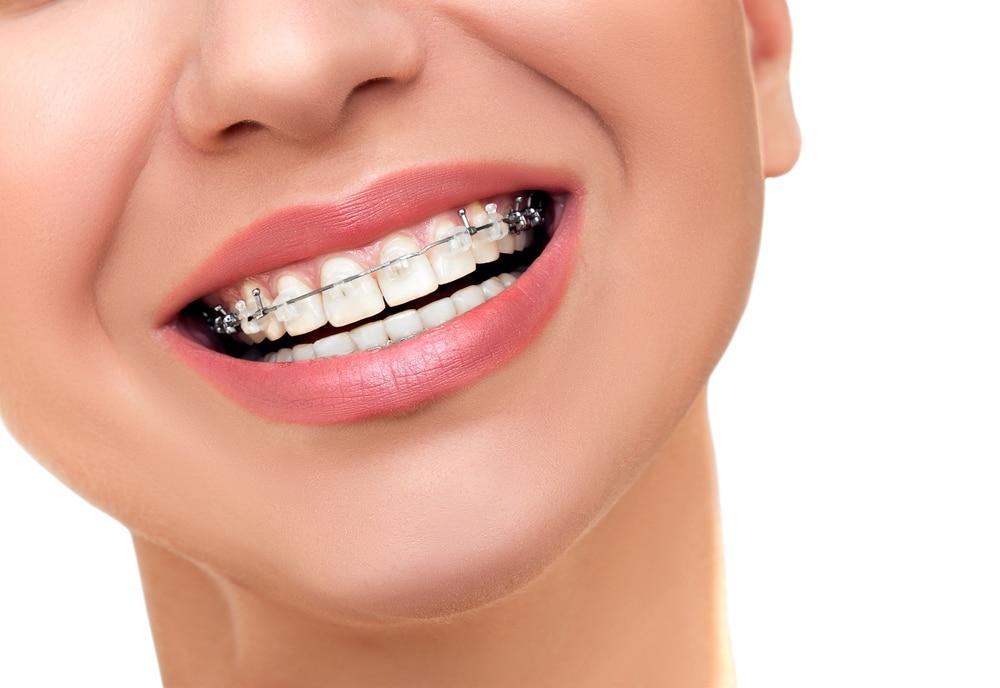 Soins en orthodontie invisible